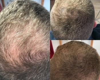 Hairbodyrepair - Voor Wie? - Densiteit – Optische verdichting